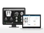 クラウド電子カルテ「Clipla」、医療用画像管理システムとの連携機能をリリース