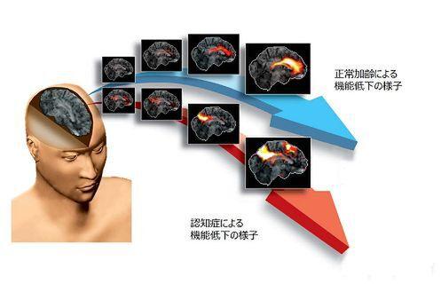 浜松ホトニクス、Azureを用いた認知症の早期診断支援システムを開発中