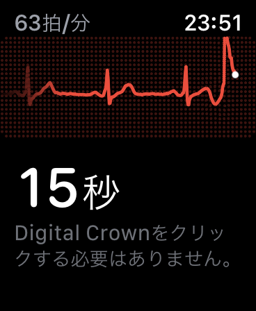 apple watch ecg 日本