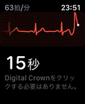 Apple Watch心電図機能を試す 使い方と注意点は