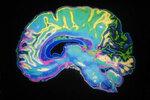 脳をハックしよう:報酬の与え方でやる気が変化する