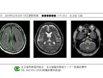 名古屋臨床検査センター、CTやMRIの結果をスマホで受け取り可能に